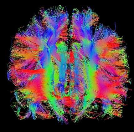 Абстиненцията, предизвикана от психостимуланти, променя функционалната структура на мозъка