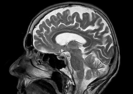 Всяка употреба на алкохол е вредна за мозъка, открива проучване